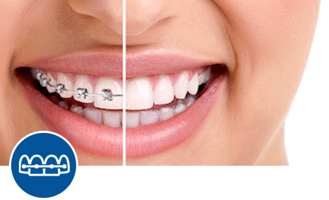 OrthodonticDentistry